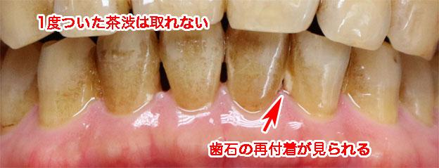 トータルケアとソニッケアーをやっても歯石は付く